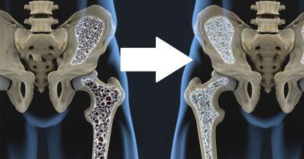 food-osteoporosis-FI-800x419